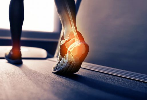 How Shockwave Therapy Can Help With Plantar Faciitis